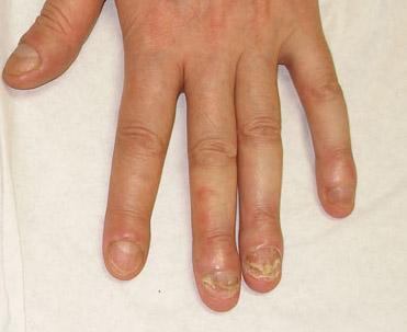 La terapia láser del hongo de las uñas las revocaciones